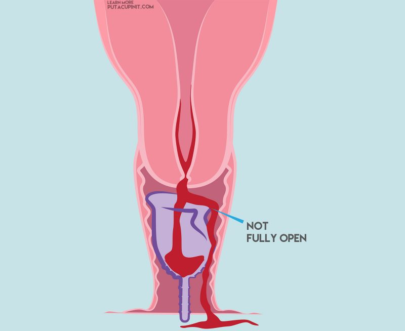 menstrual cup leaks not open